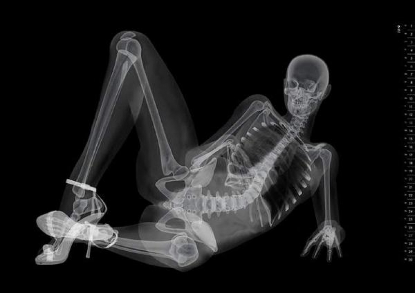 Eizo Pin-up Calendar 2010 X-ray